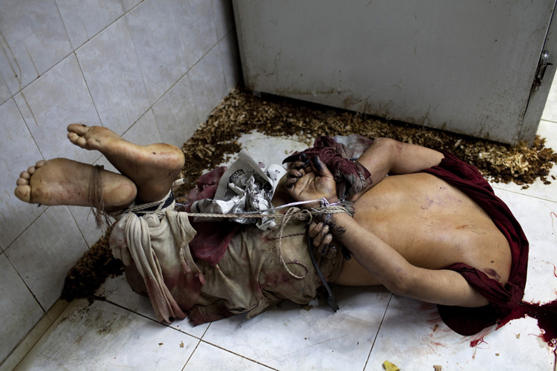 The body of a man, beheaded, with signs of torture lies on the city morgue after being picked up by forensic examiners from the street where it was dumped, Acapulco, Mexico