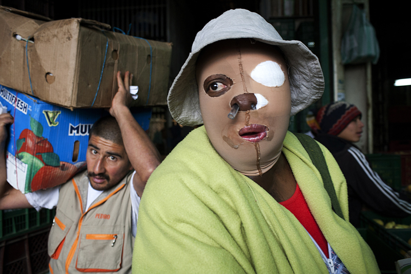 Consuelo Cordoba begs at a fruit and vegetable market in Bogota. She was the victim of an acid attack by a boyfriend 11 years ago.