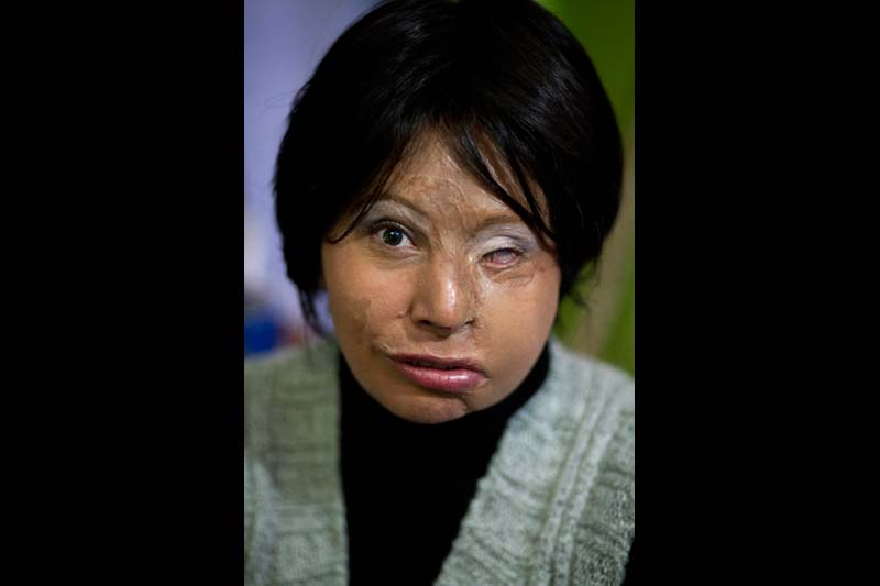 "Maria Cuervo at home in Bogota. She suffered an acid attack nine years ago by an unknown assailant and has endured 50 surgeries. The stranger shouted, ""This is so you don't think you're so pretty,"" and obliterated her face."