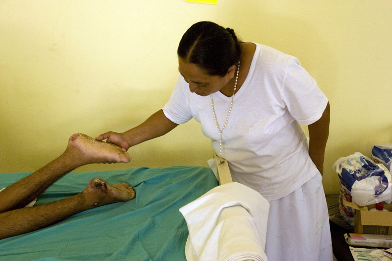Mrs. Olga Sanchez examines the feet of an illegal immigrant who was the victim of a machete attack while working on a farm. Tapachulas, Mexico